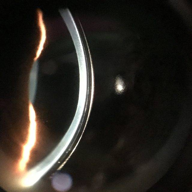 Cornea With Scleral Lens 1280×853