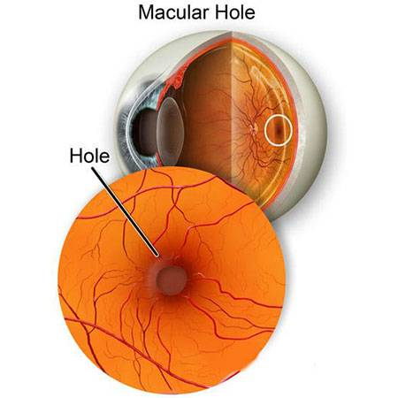 what is macular hole